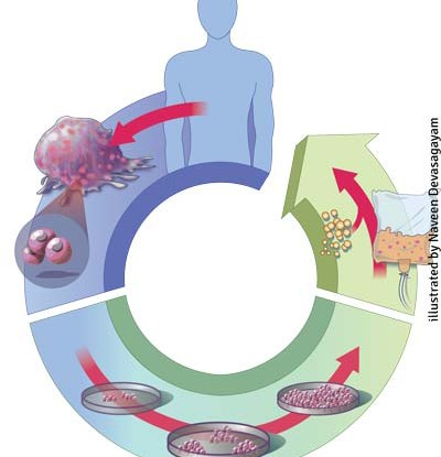 autologous-cell-therapy-400x415