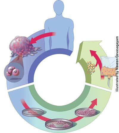 autologous-cell-therapy